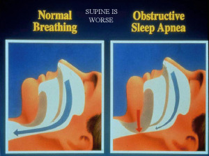 OSA:  Obstructive Sleep Apnoea / Apnea